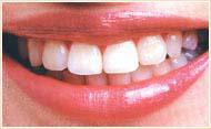 口の裏側に装着する装置