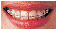 白い目立たない装置を使用した表からの歯列矯正治療