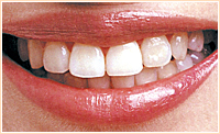 裏からの見えない装置を使用した歯列矯正治療